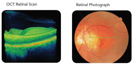 Retinal OCT Scan & Retinal Photography